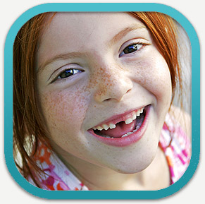 Tooth Extraction and Wisdom Teeth Removal in Palo Alto, Menlo Park, Atherton