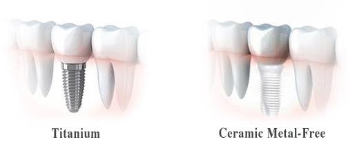Dental Implants, Metal-Free Dental Implants Palo Alto, Menlo Park, Atherton