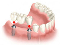 "alt=""Dental"