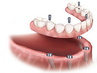 Screw Retained Lower Denture Palo Alto, Menlo Park, Atherton